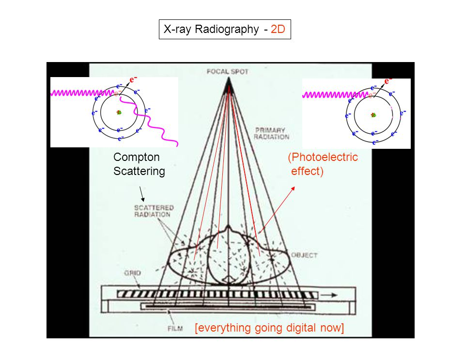 X-ray Radiography - 2D Compton Scattering (Photoelectric effect) [everything going digital now]